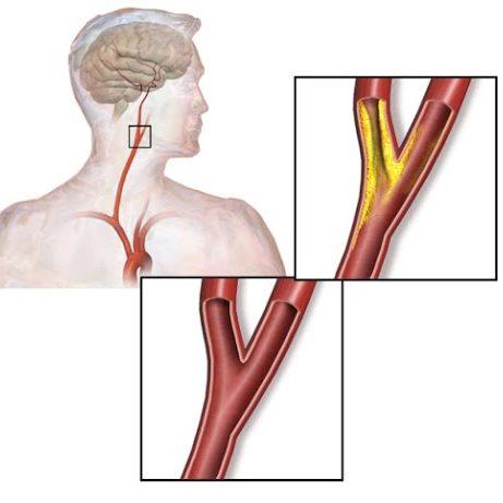 stenosi carotidea